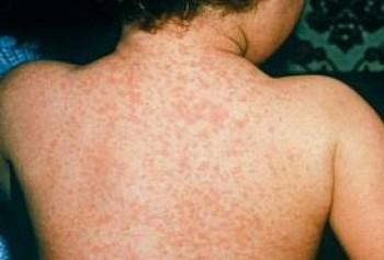 Measles (1)